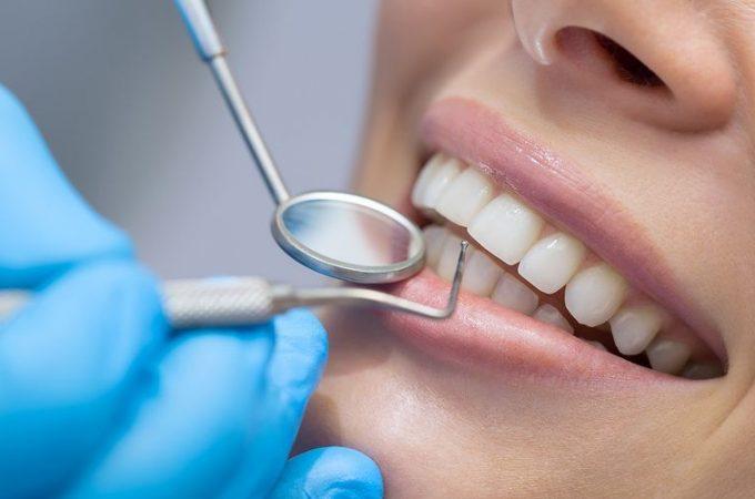 Kako mi G tačka pomaže da pronađem stomatologa